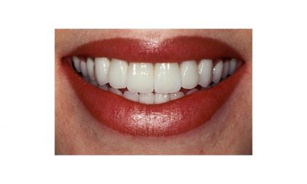 Top 10 Tips for Healthy Teeth…for Anyone Who is 50 Years Plus