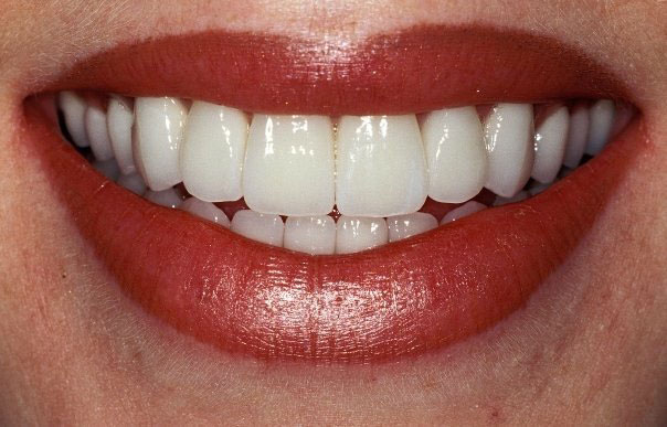 Top 10 Tips for Healthy Teeth… for Anyone Who is 50 Years Plus